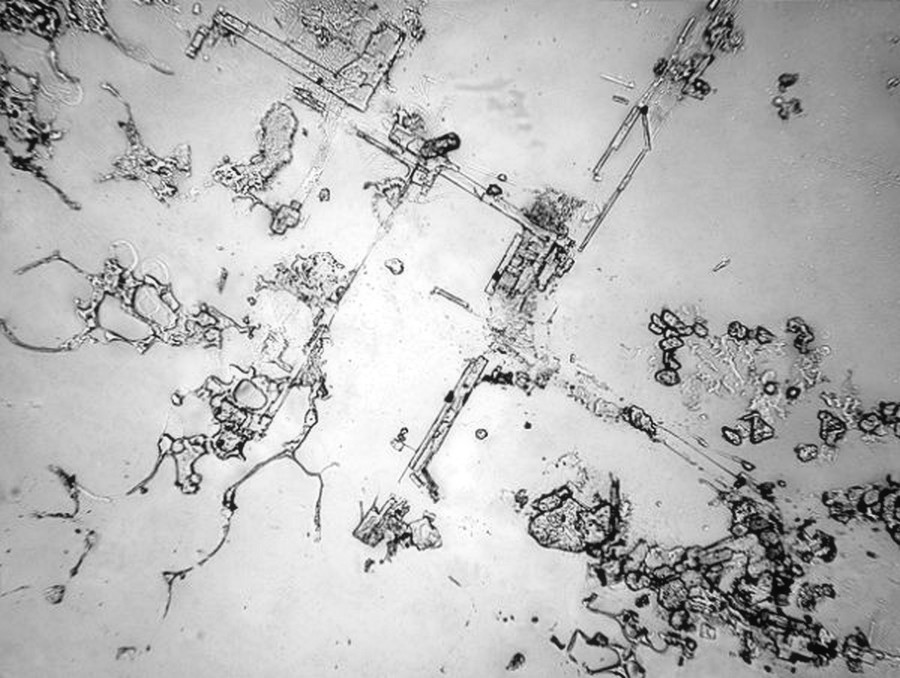 dried-human-tears-under-a-microscope-by-rose-lynn-fisher_4